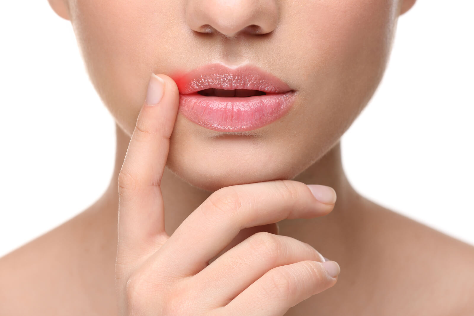 How To Get Rid Of Cold Sores Fast