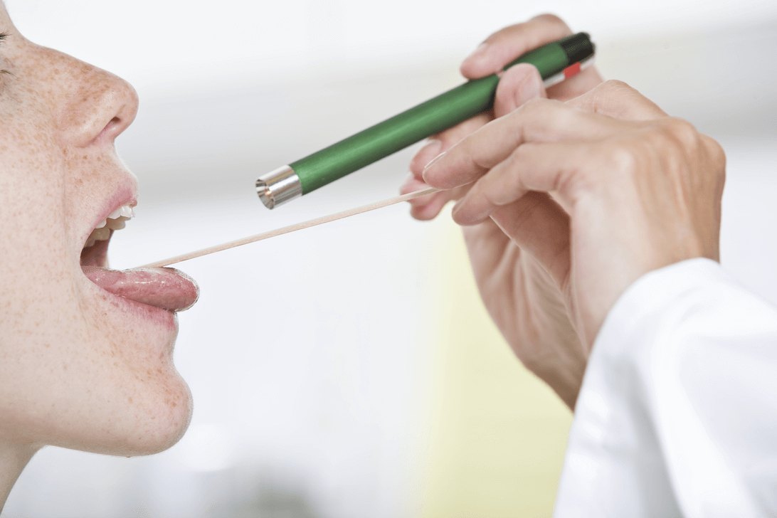 Strep Throat vs. Cold: What's the Difference?
