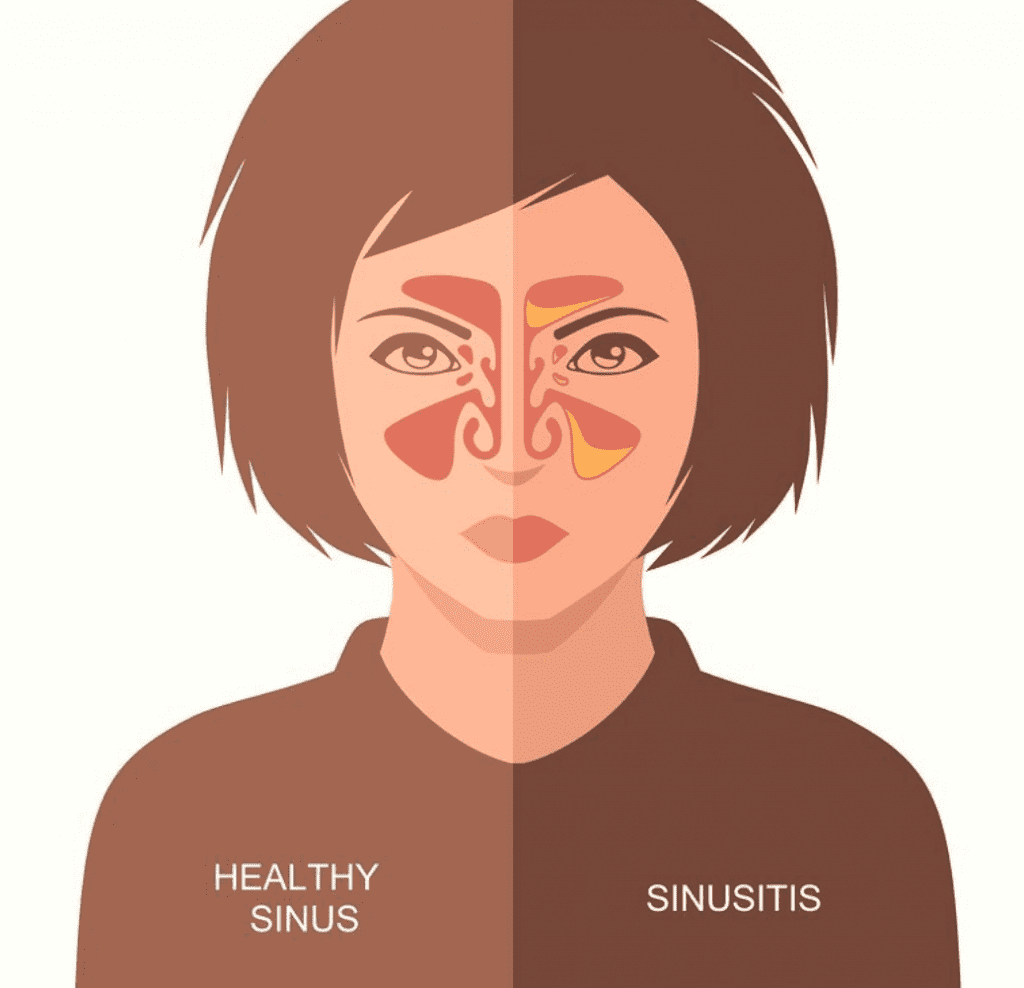 healthy sinus vs sinusitis